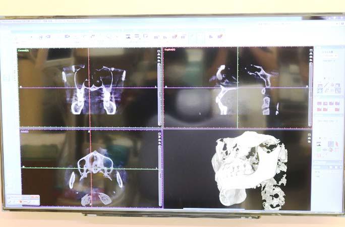 CTと歯科治療