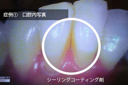 img_hagashimiru1