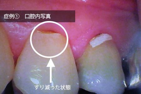 img_hagashimiru_suriheri_before