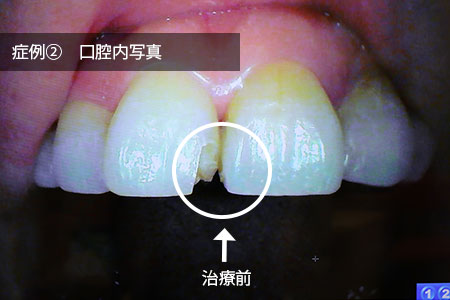 img_kakeru7