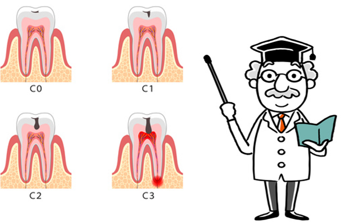 歯医者のC4って何?