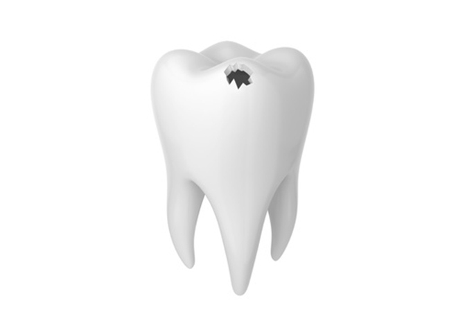 歯に穴が突然あきました