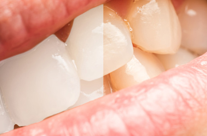 歯の汚れ ヤニや着色の原因と除去方法