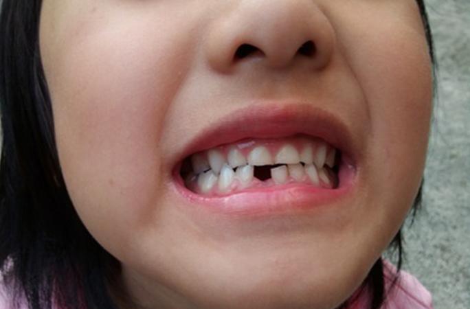 乳歯の抜歯を詳しく解説