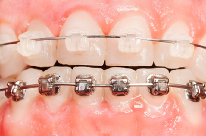 歯ならびの無料相談
