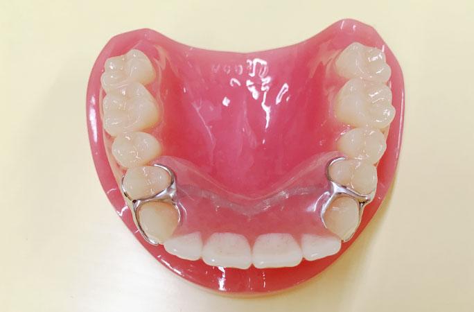 針金やバネのない入れ歯