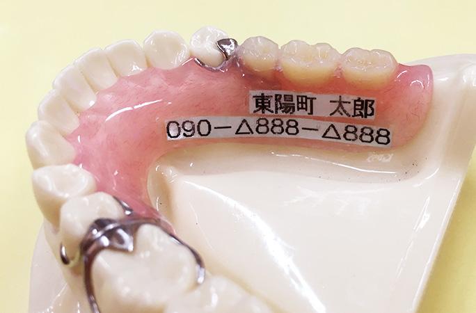 入れ歯に名前を入れます