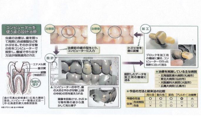 読売新聞 コンピューター用い歯の「かぶせ物」設計 合成樹脂 機械で削り出す