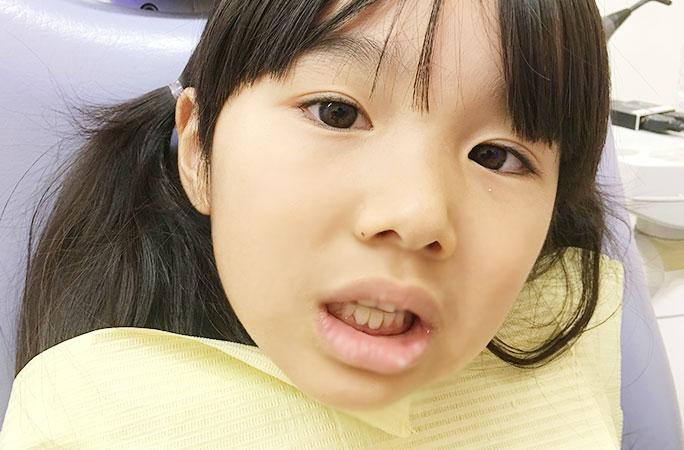 子供撮影用義歯(入れ歯・差し歯)