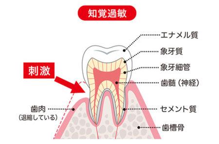 虫歯じゃないのに歯が痛いのは
