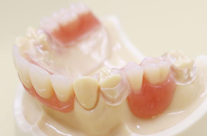 最新の目立たない入れ歯