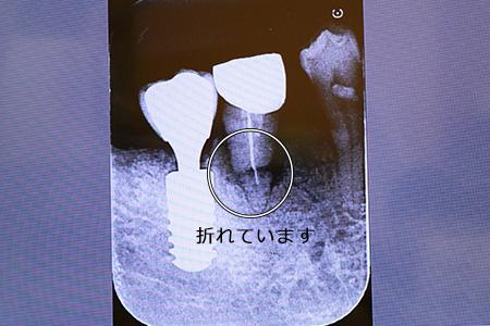 差し歯が折れる