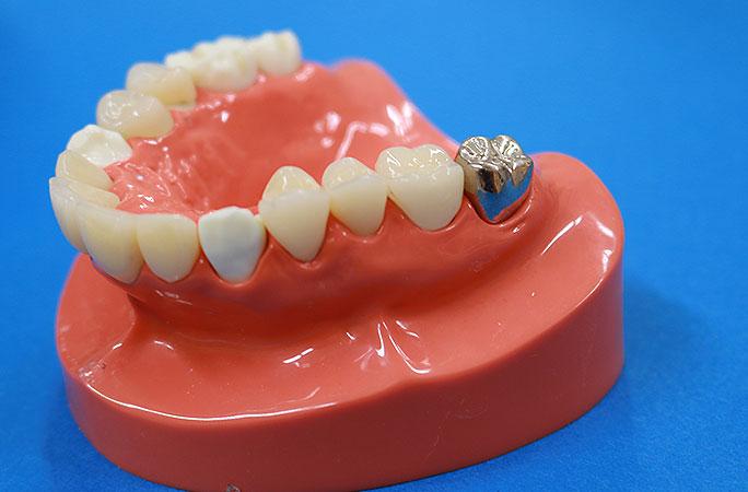 保険で白い歯の欠点