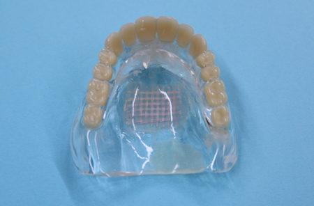 金属アレルギーの方でも安心な入れ歯の修理