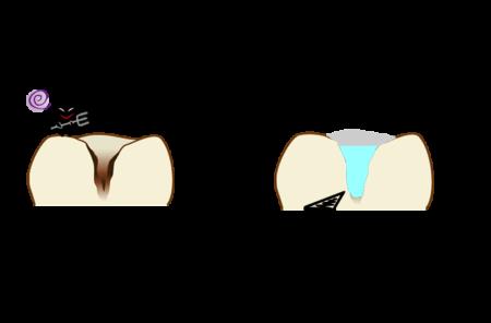 3MIXーMP法 歯を削らない・抜かない最新の治療法とは
