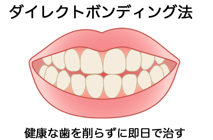 ダイレクトボンディング法による1DAY審美歯科